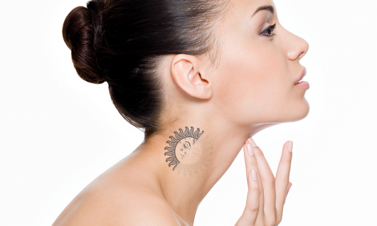 Laser Treatment for Tattoo Removals