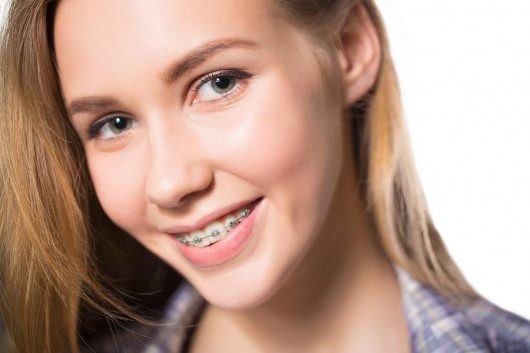 A beautiful girl is doing jaw correction treatment. She is happy and smiling