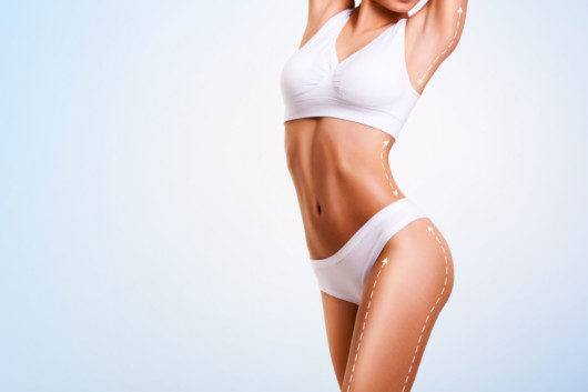 5 Reasons Liposuction Gets a Gold Star for Fat Reduction