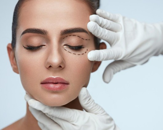 Top Ten Most Asked Questions About Facelift Surgery
