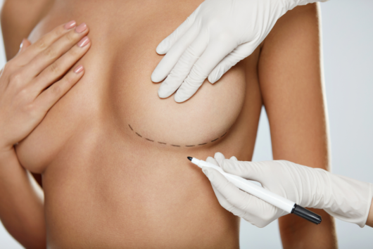 A doctor is putting marks under the breast of the girl before the breast removal procedure