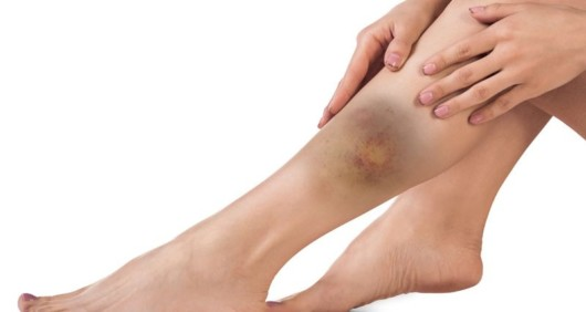 A woman with a huge bruise on her shin. She has a shin injury