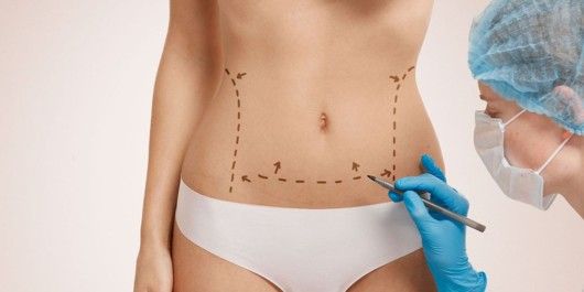 A doctor is marking the girl's places to be removed during the tummy tuck operation