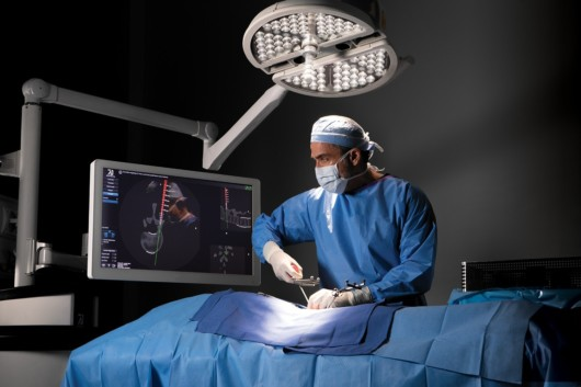 The frame for the MvIGS scan allows the surgeon to easily use an advanced 3D interface