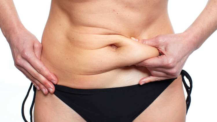 The girl in black underwear pinches her belly to show loose skin. The girl shows how much belly fat she has