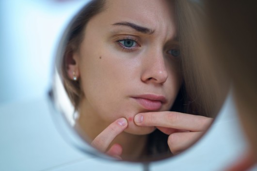 Girl in front of the mirror is trying to get rid of the pimple