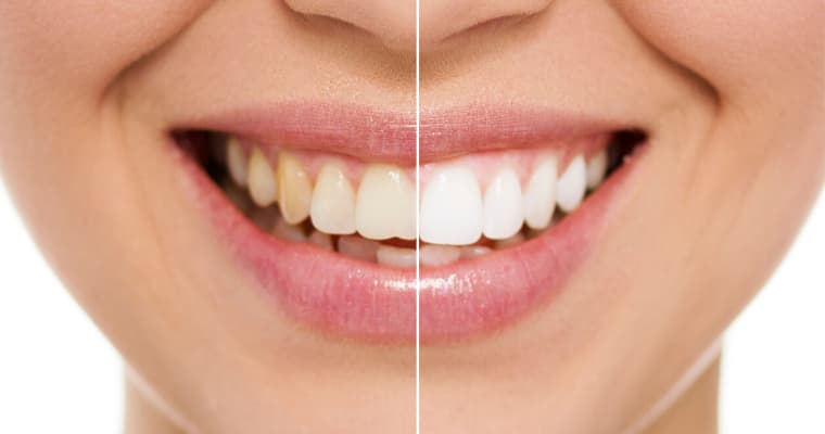 Girl showing before and after teeth whitening results