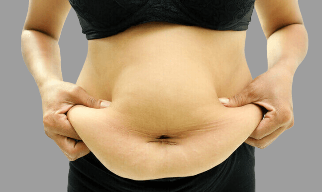 A woman with a significant amount of weight, big belly and loose skin within midsection