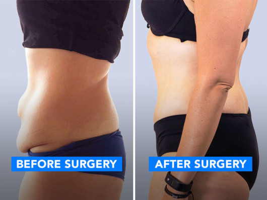 A woman showing her belly photo before and after tummy tuck surgery