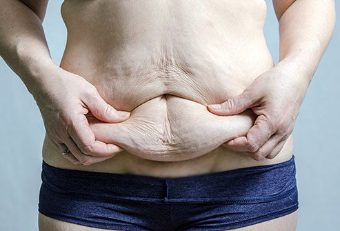 A woman holding her excess skin on the belly
