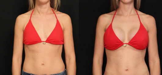 A girl in a red swim top shows before and after breast augmentation pictures