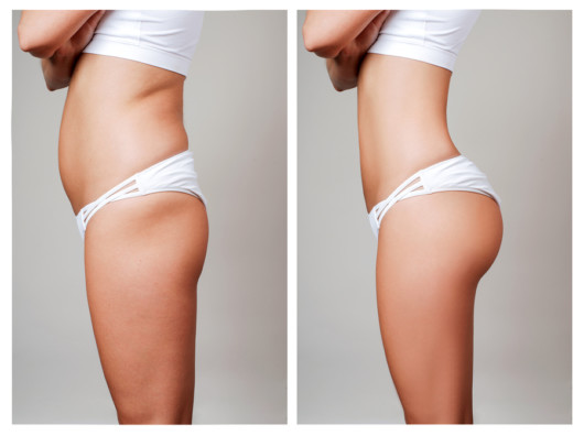 Female body before and after liposuction. Surgical fat transfer.