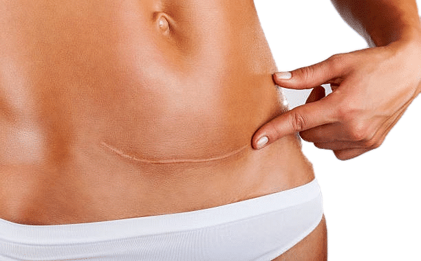 Girl showing her scar after tummy tuck procedure