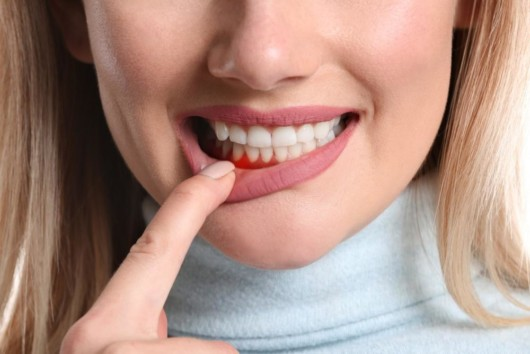 A beautiful woman pointing out at her teeth with gum disease