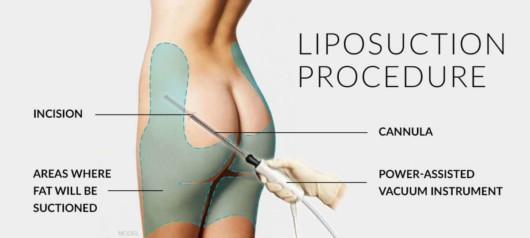 The doctor is showing how to do liposuction procedure a girl