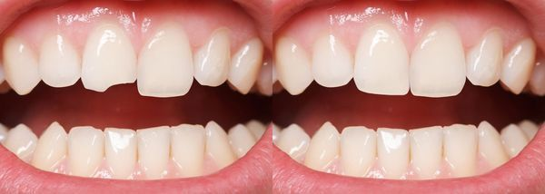 A mouth with before and after teeth bonding