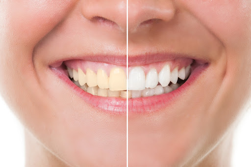 A woman smiles wide and shows her before and after teeth whitening