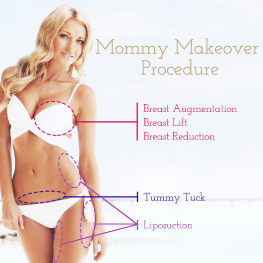 Beautiful girl in a swim suit shows that during mommy makeover procedure you can do breast augmentation, tummy tuck and liposuction