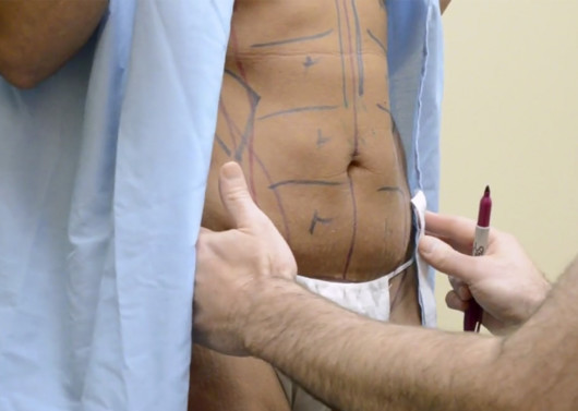 The woman with marks on her body before mommy makeover procedure