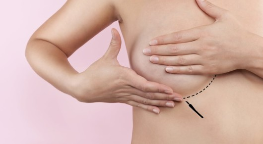 What Are My Options for Incision Locations With Breast Implants?