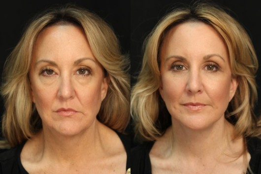 a middle age woman shows the results of before and after facelift operation