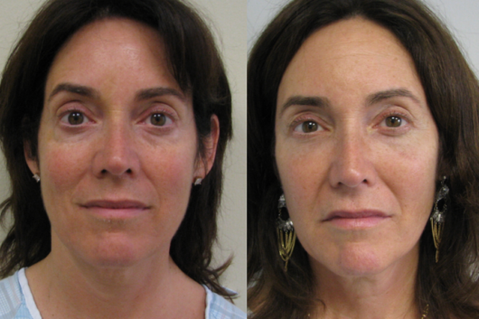 A close up women's face before and after facelift procedure