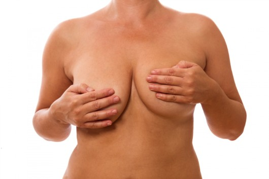A close up picture of a woman's torso isolated with asymmetric breasts that she is covering with her hands