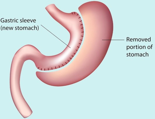 A picture that shows how gastric sleeve surgery is performed