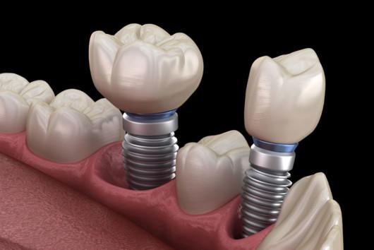 3d dental implants on black