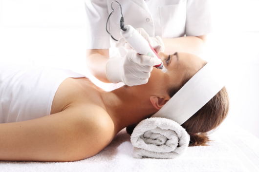 A girl Id lying on the white bed and the doctor is doing Potenza Radiofrequency Microneedling on her face