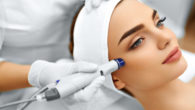 A doctor is doing Potenza™ Radiofrequency Microneedling to the girl