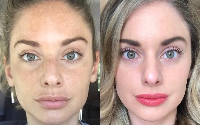 Before and after pictures of the girl's face after the RF Microneedling procedure
