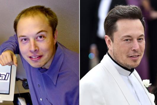 Elon Mask before and after hair transplantation