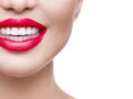 A close up picture of a girls mouth on white with red lipstick and perfect white teeth