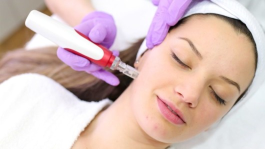 A girl is lying with her eyes closed and doing microneedling procedure