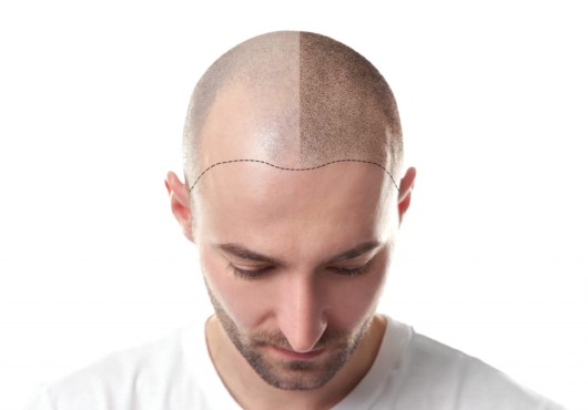 Bold man isolated on white showing his head before hair transplantation. One part of his head is bold and the other is with transplanted hair
