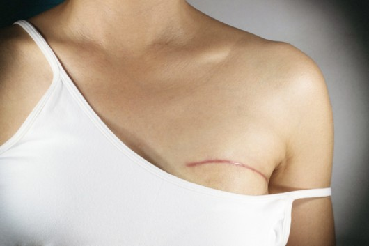 When to Consider Breast Reconstruction Procedure