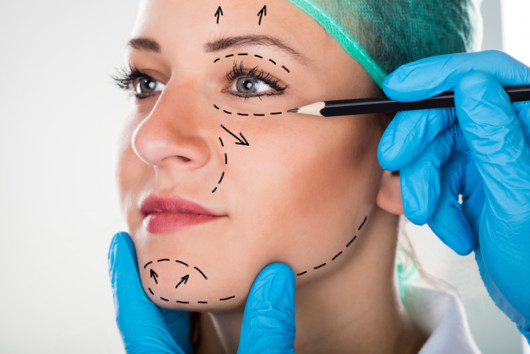 A close up girl's face with doctor's preparation marks for facelift surgery
