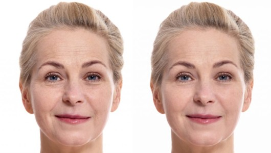 Before and after pictures of a woman after rejuvenation treatments