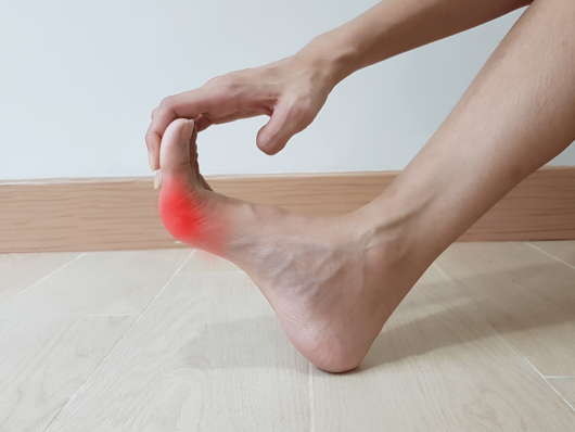 6 Essential Tips for Treating Gout