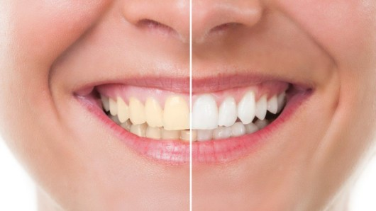 A close picture of the girl's mouth before and after teeth whitening