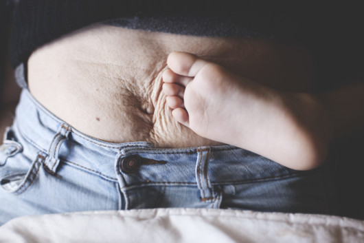 Have Your Body Changed Since Giving Birth? Try Plastic Surgery